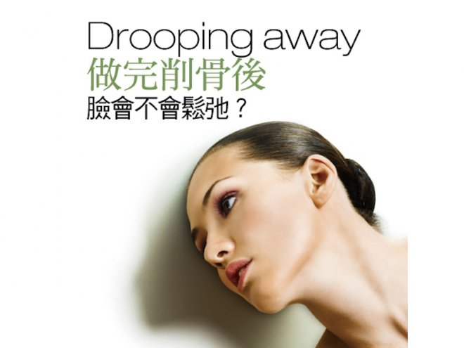做完削骨後 臉會不會鬆弛?,香港交友討論區